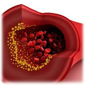 Холестерол (56)